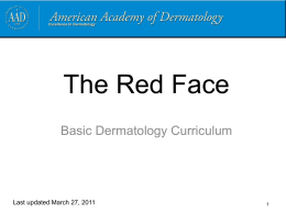 The red face - American Academy of Dermatology
