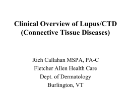 Clinical Overview of Lupus/CTD (Connective Tissue